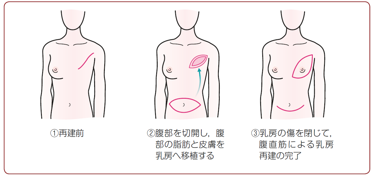 Q27.乳房再建について教えてください。 | ガイドライン | 患者さんの ...